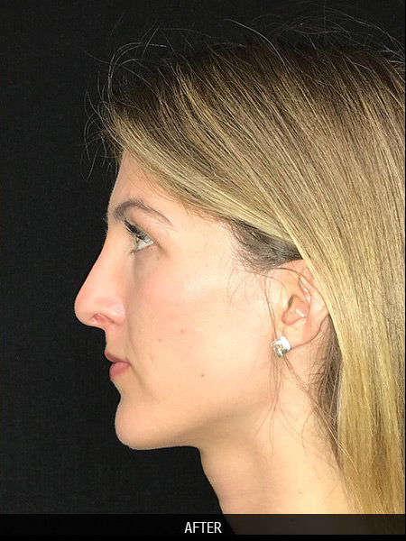 After rhinoplasty surgery to correct nose drooping