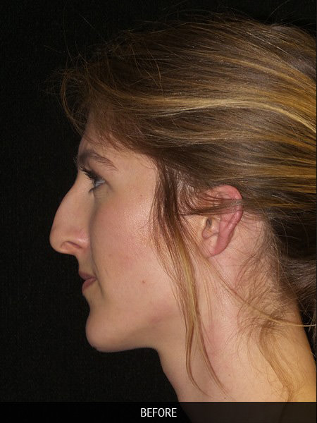 Before rhinoplasty surgery to correct nose drooping
