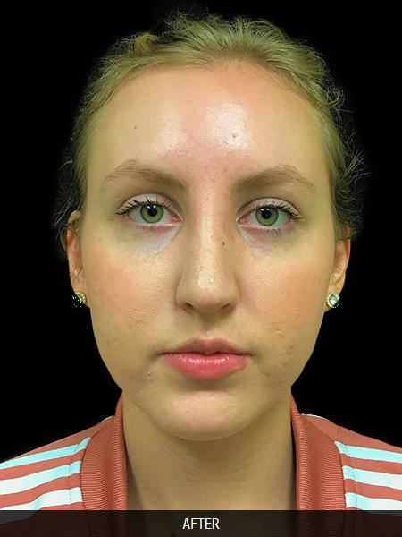 After rhinoplasty to correct nose bridge