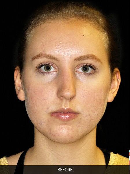 Before rhinoplasty to correct nose bridge