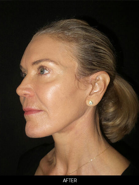 After facelift and skin resurfacing