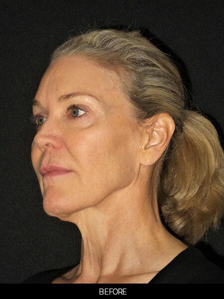 Before facelift and skin resurfacing