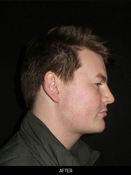 After neck submental loposuction and chin implant