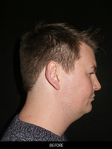 Before neck submental loposuction and chin implant