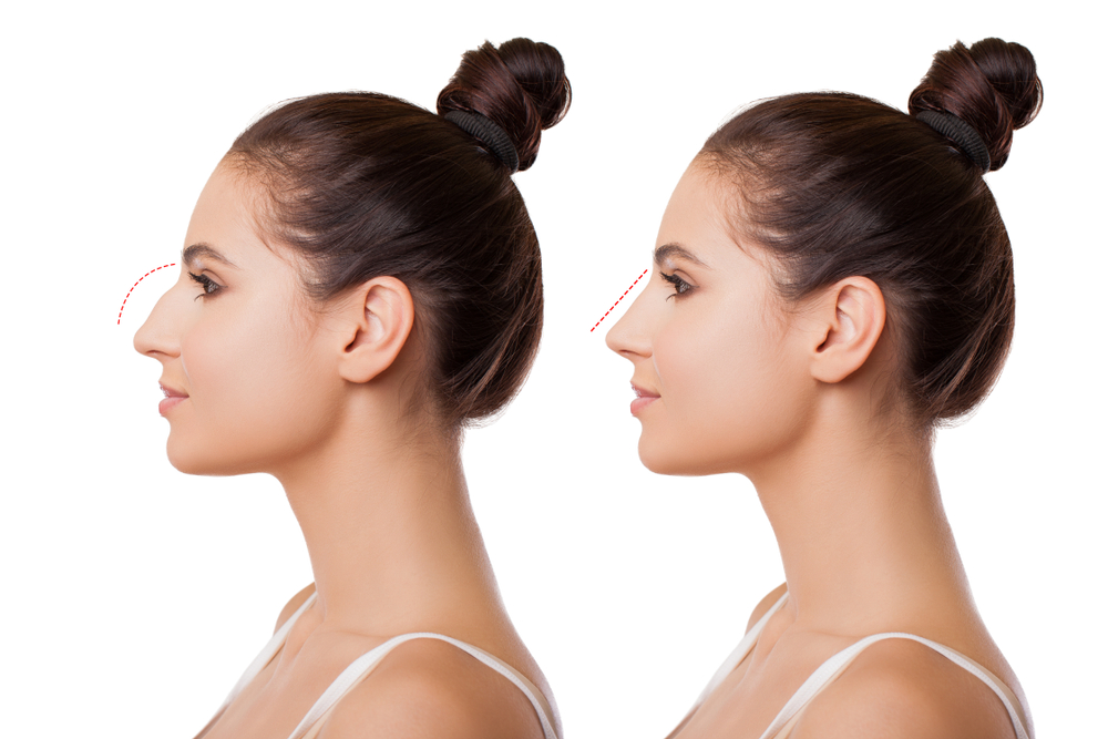 before and after diagram of rhinoplasty with line showing change in shape