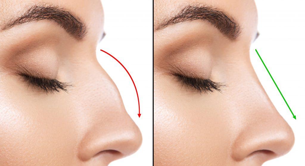 Surgical vs. Non Surgical Nose Jobs.